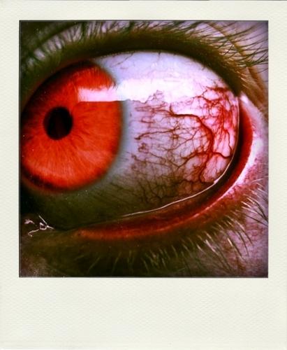 ma retine.jpg